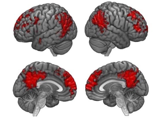 Multilingual Brain Scans