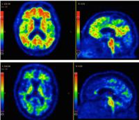 PET and MRI Feature Scan