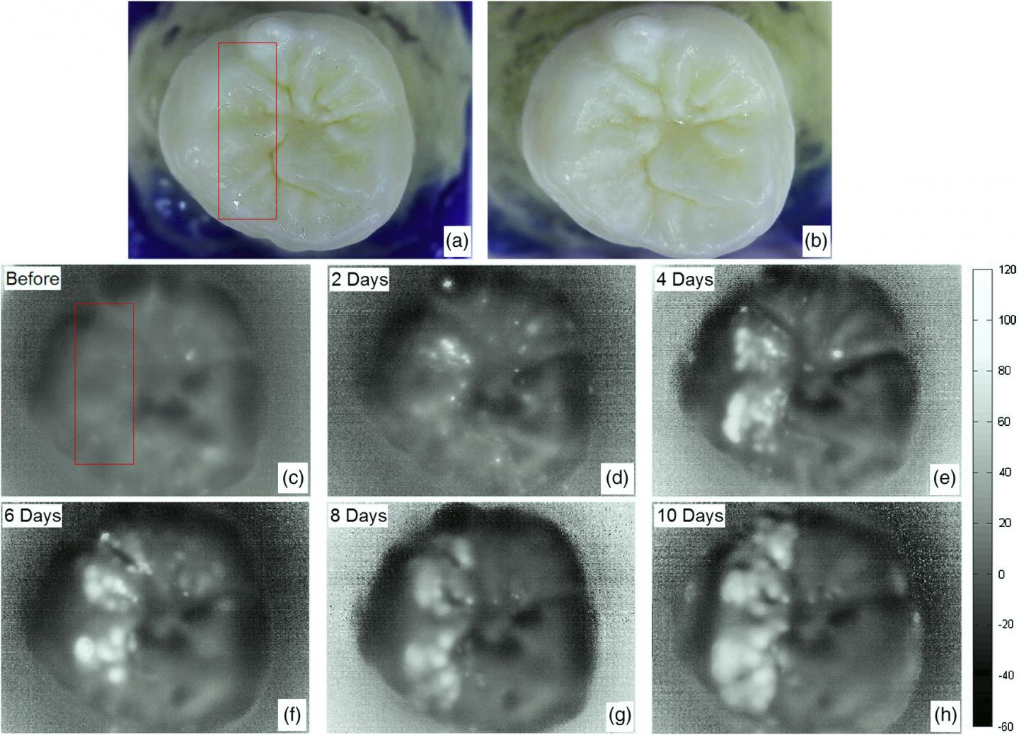 York University Researches New Imaging Tool for Tooth Decay Detection