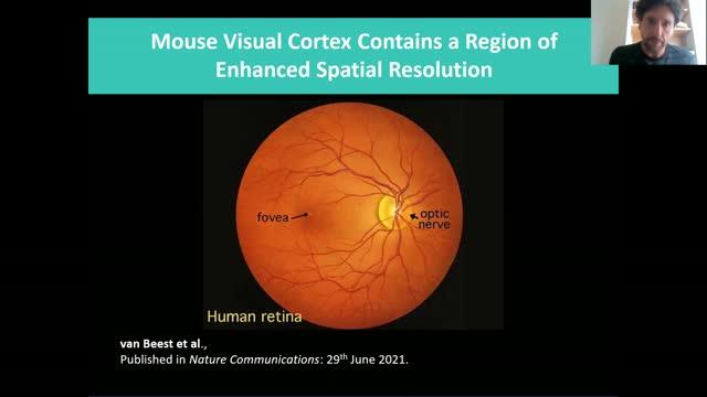 Mouse visual cortex contains a region of enhanced spatial resolution