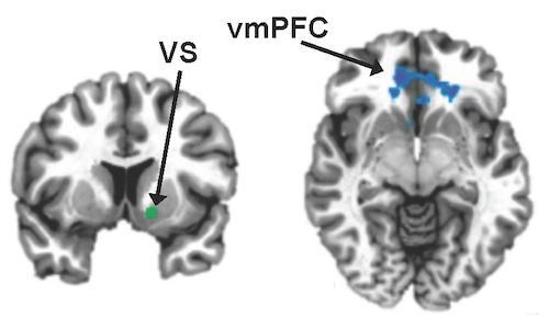 vmPFC-VS