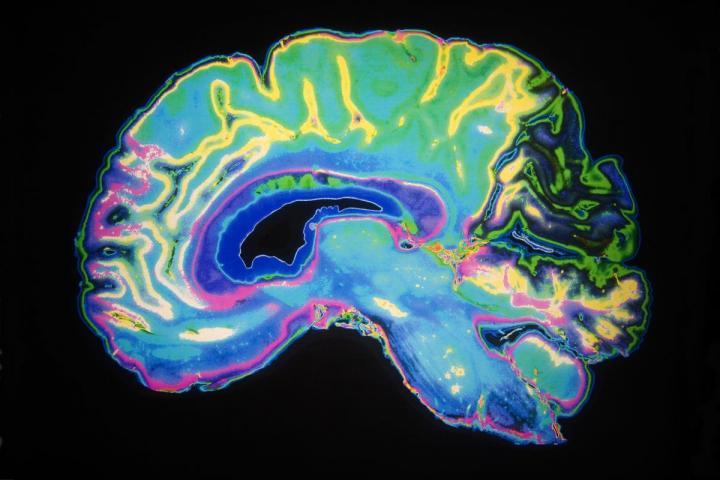 The brain heals during sleep.