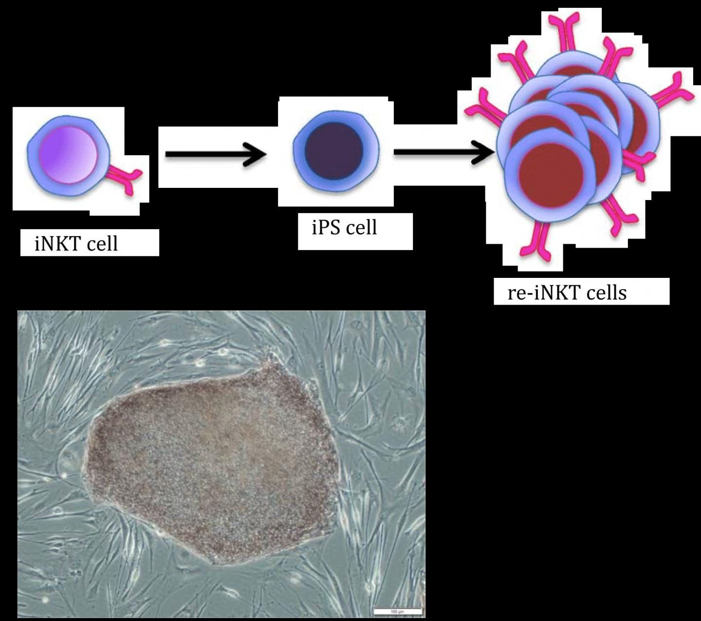 iNKT Cells Made by iPS Cell Technology
