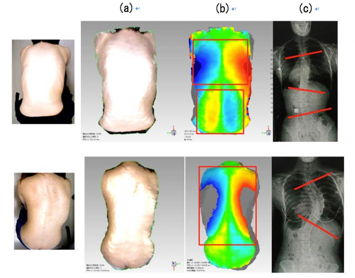 Image Analyses of Idiopathic Scoliosis Sufferers Using 3-D, Back-Surface-Symmetry-Recognition System