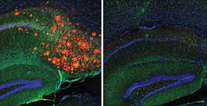 Cholesterol regulates Alzheimer's plaques