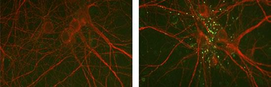A Collagen XIX Peptide Restores Inhibitory Synapse Formation