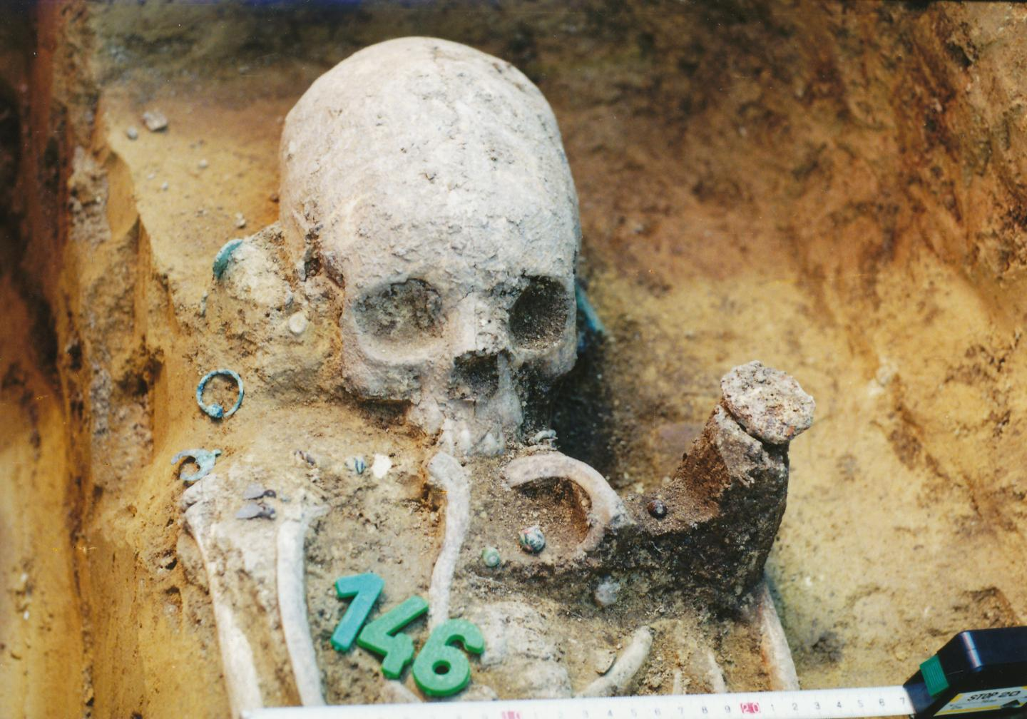 Deformed skulls in an ancient cemetery reveal a multicultural community in transition