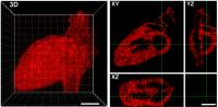 Hydrogel patterning with mCherry -- 3D human heart