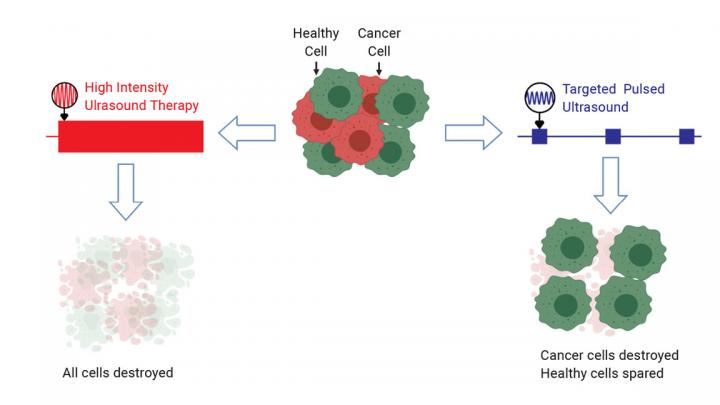 Targeted Pulsed Ultrasound Takes Advantage of the Unique Mechanical Properties of Cancer Cells