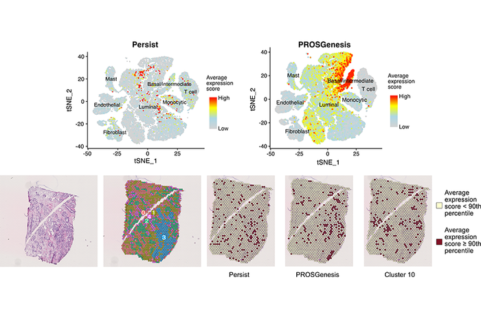 Single-cell level regenerative (PROSGenesis) and stem-like (Persist) gene patterns identified in prostate specimens