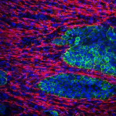New in Vitro (In-Laboratory) Model of Pancreatic Cancer with Fibrotic Components
