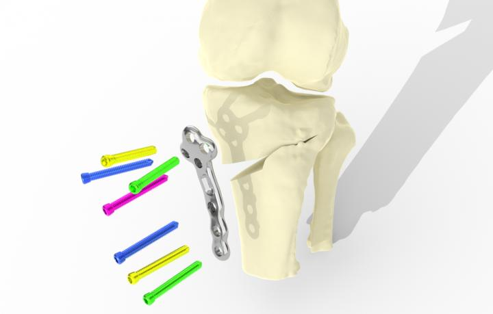 Diagram showing the implant attaching to the skeleton