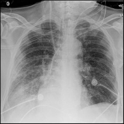 New Tool Better Predicts Respiratory Failure