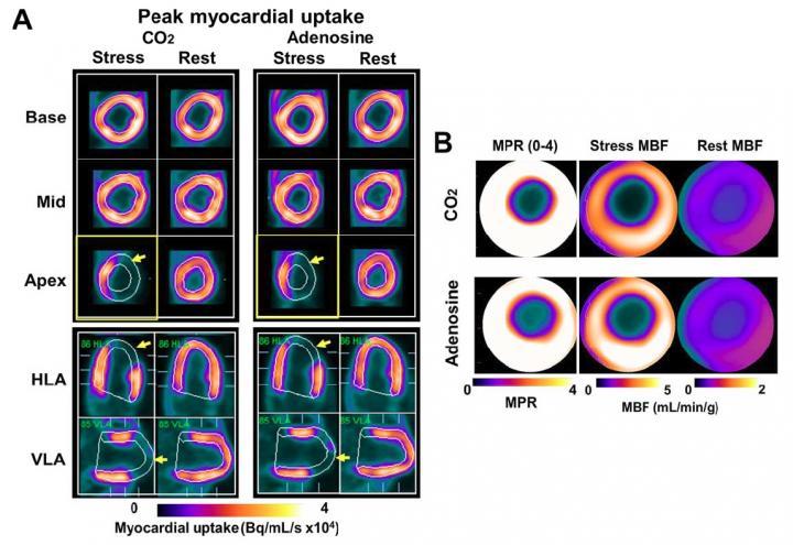Regional Myocardial Blood Flow Response to Hypercapnia and Adenosine in the Presence of Coronary Stenosis