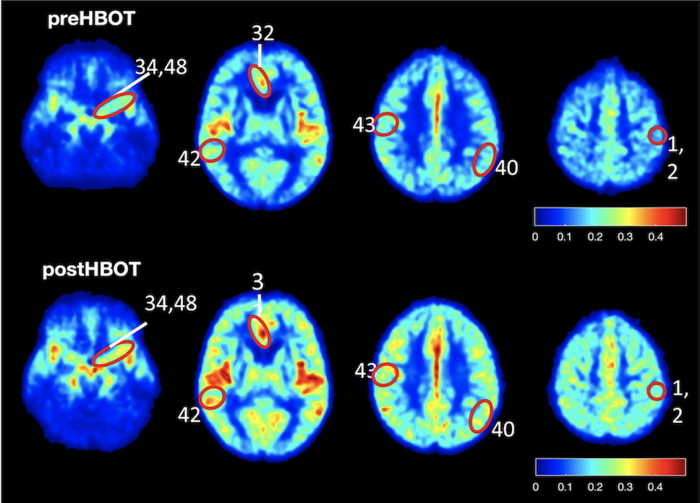 Study results show elevated blood flow and improved oxygenation in the brain of patients suffering from cognitive impairment