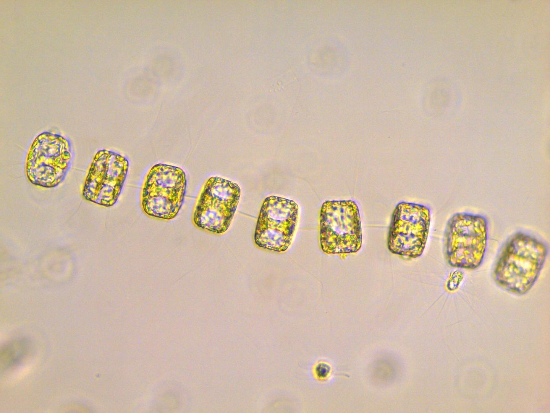 Diatoms Are Unique Phytoplankton