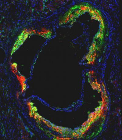 Novel Statin Nanotherapy