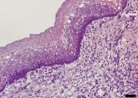 Illustration Regenerated Esophagus