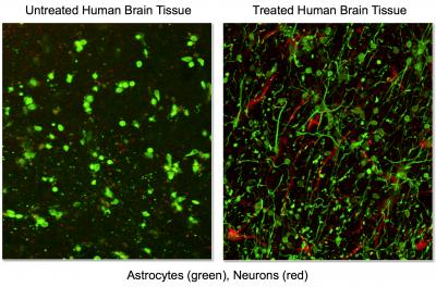 Discovery Leads to Patent for Novel Method of Treating Traumatic Brain Injury
