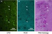 Fluorescence Imaging Demonstration of Conjunctival Goblet Cells (CGCs)