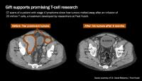 CT Scans Before and After Immunotherapy