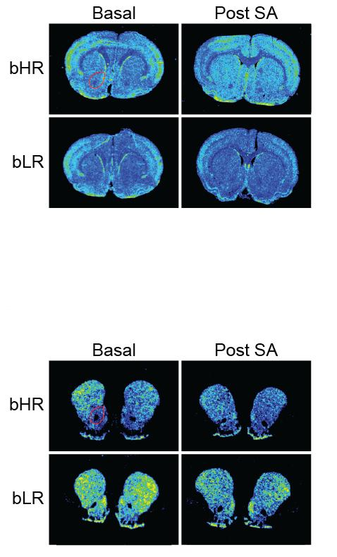 Rat Brain Gene Expression
