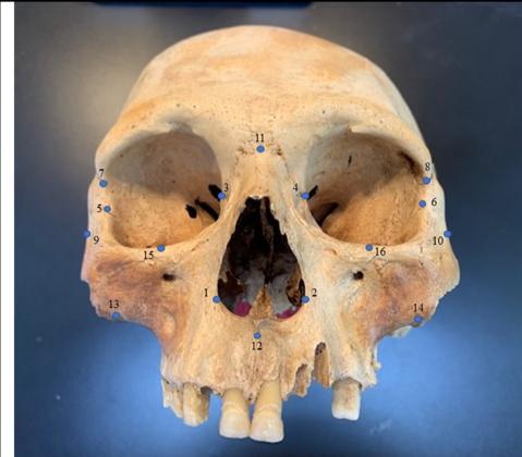 Study of Skulls Changes Understanding of Caribbean