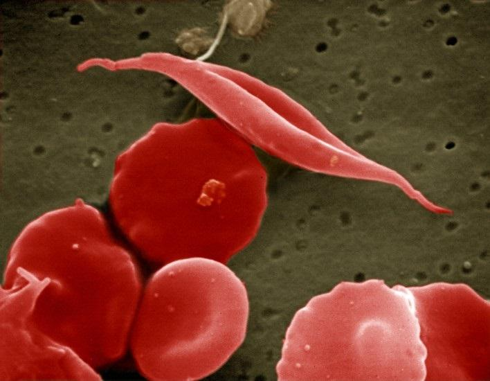 Sickled and Other Red Blood Cells