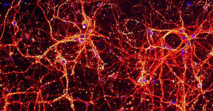 Neurons grown in the laboratory