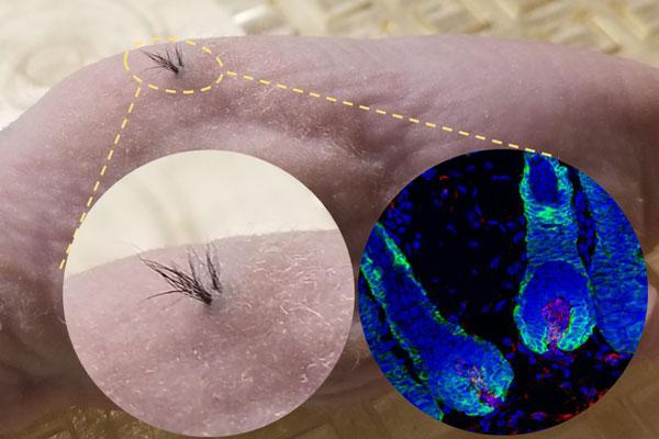 Functional Hair Follicles Were Grown from Stem Cells