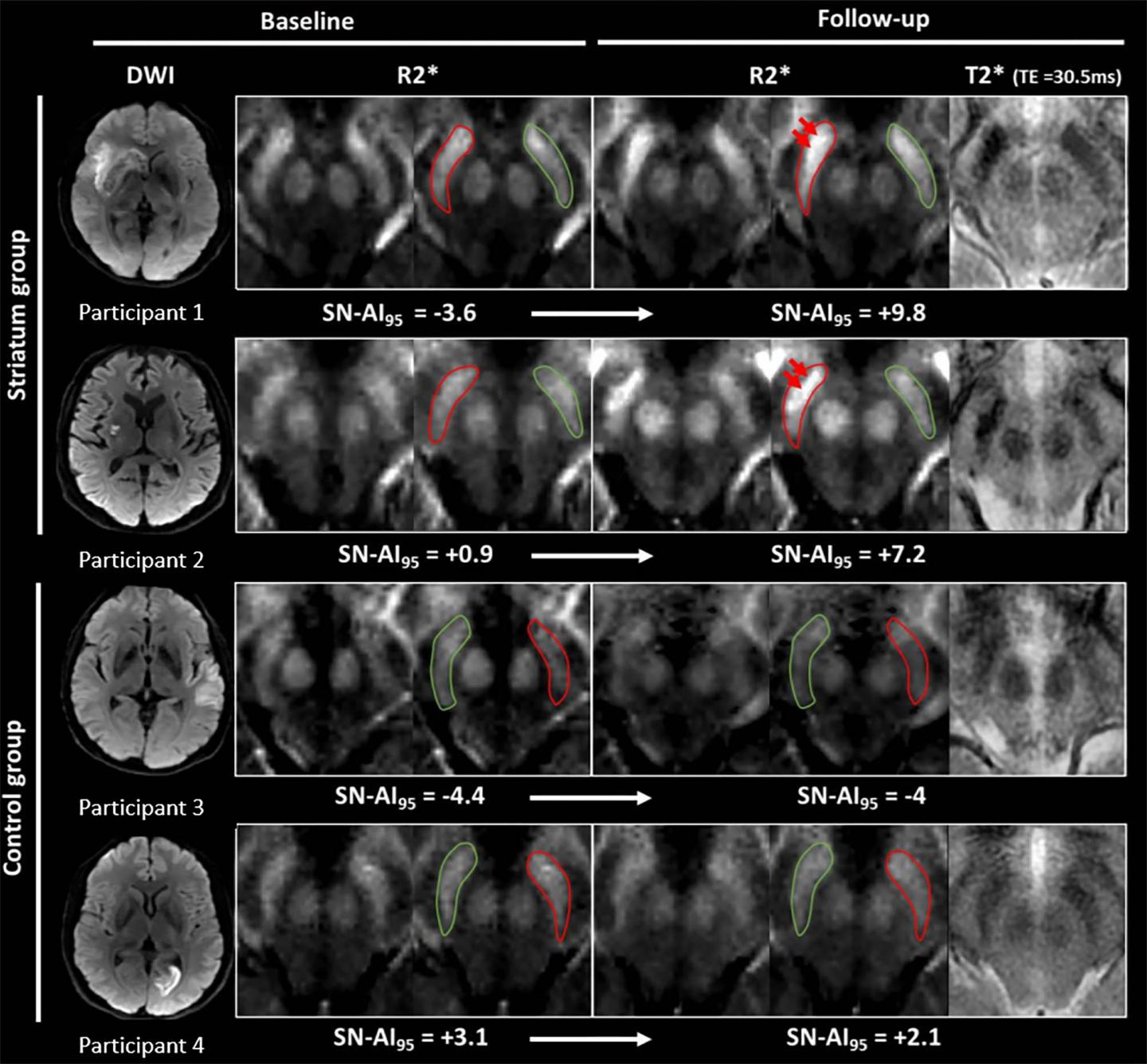 Iron Measurements with MRI Reveal Stroke's Impact on Brain (1 of 3)