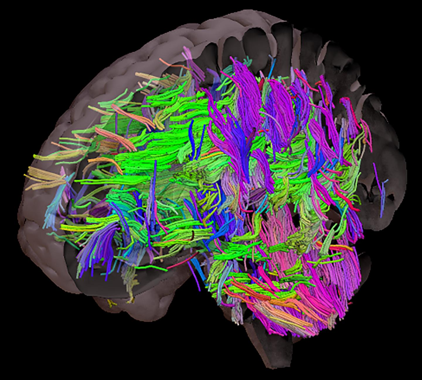 White matter tracts in the brain