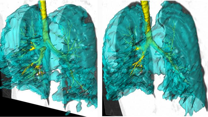 3D Images of Ventilation Defects in Twins with Asthma