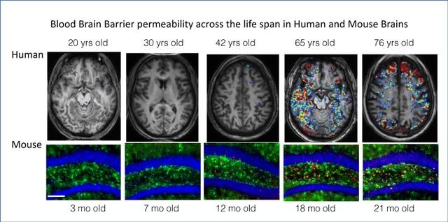 With Age, Blood-Brain Barriers Becomes Leaky