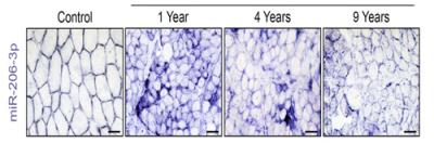 Image Scientists Uncover a Novel Approach to Treating Duchenne Muscular Dystrophy