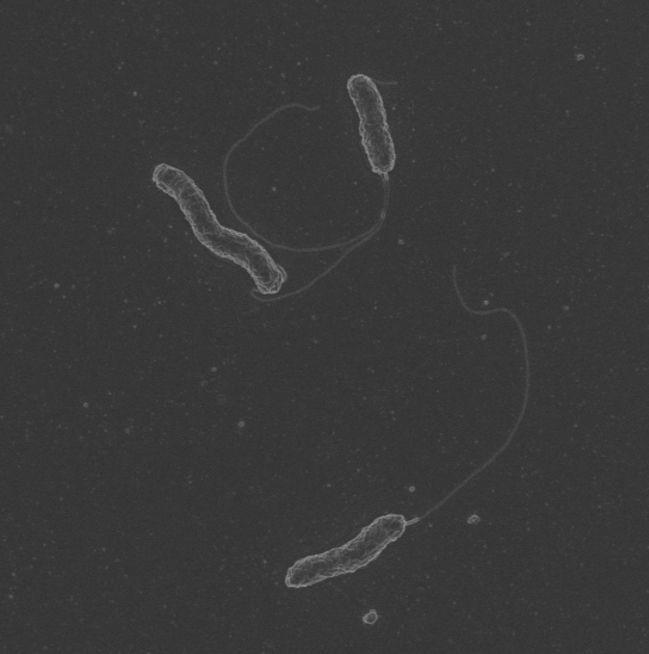 Campylobacter concisus Bacterium