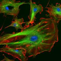 A Cellular Cytoskeleton (2 of 2)