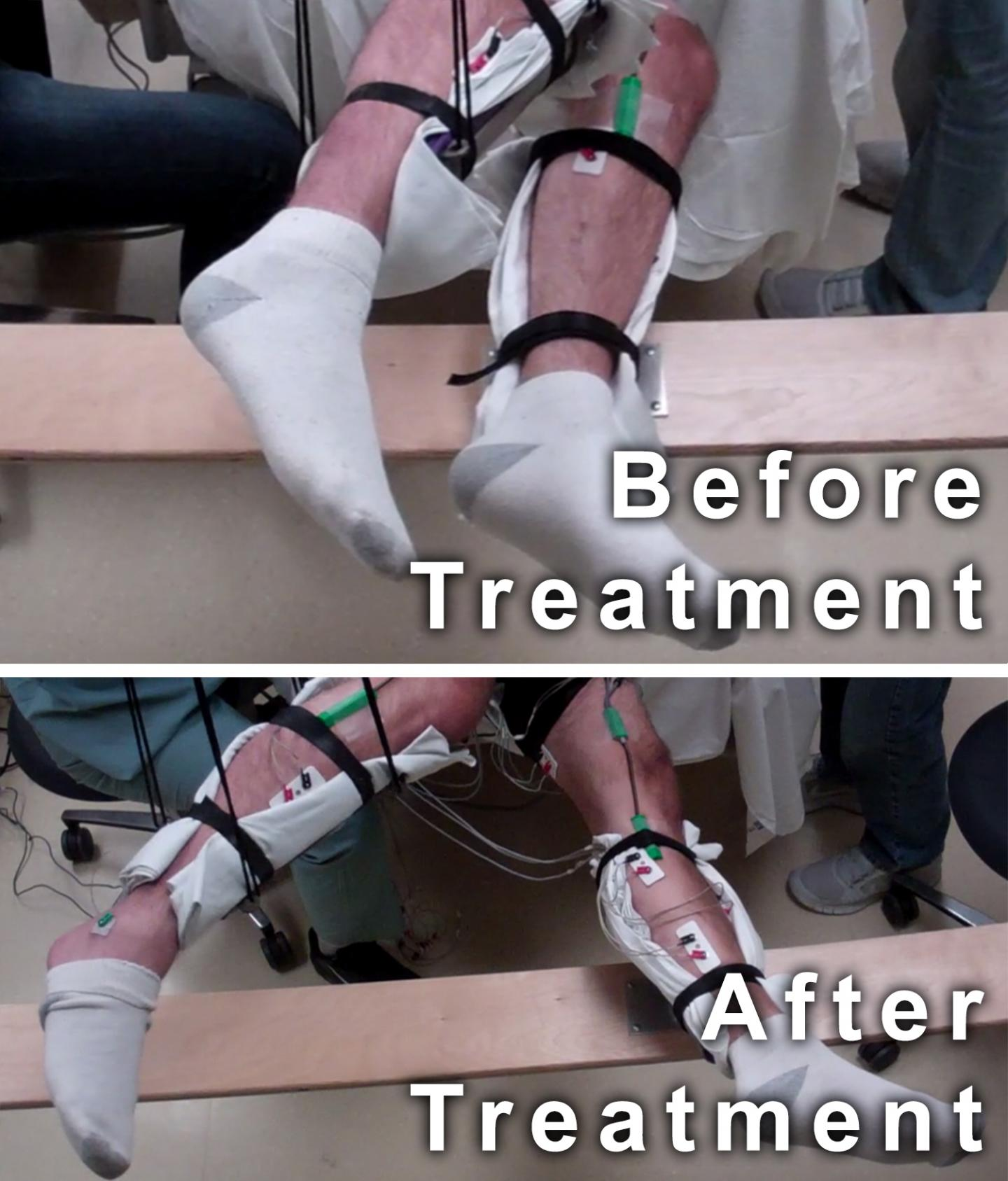 Movement before and after Treatment