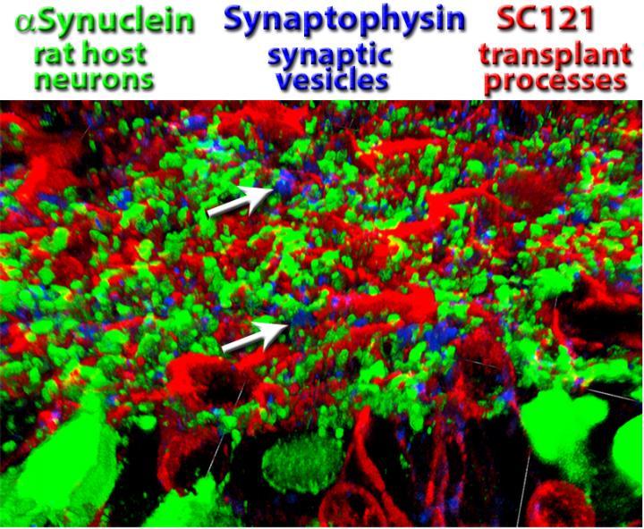 Retina Transplant Connectivity