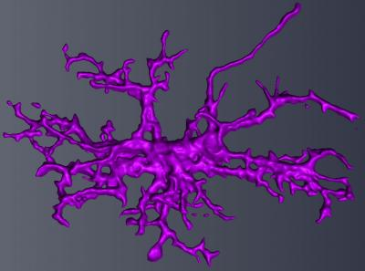 Autism in boys: Enlarged microglia