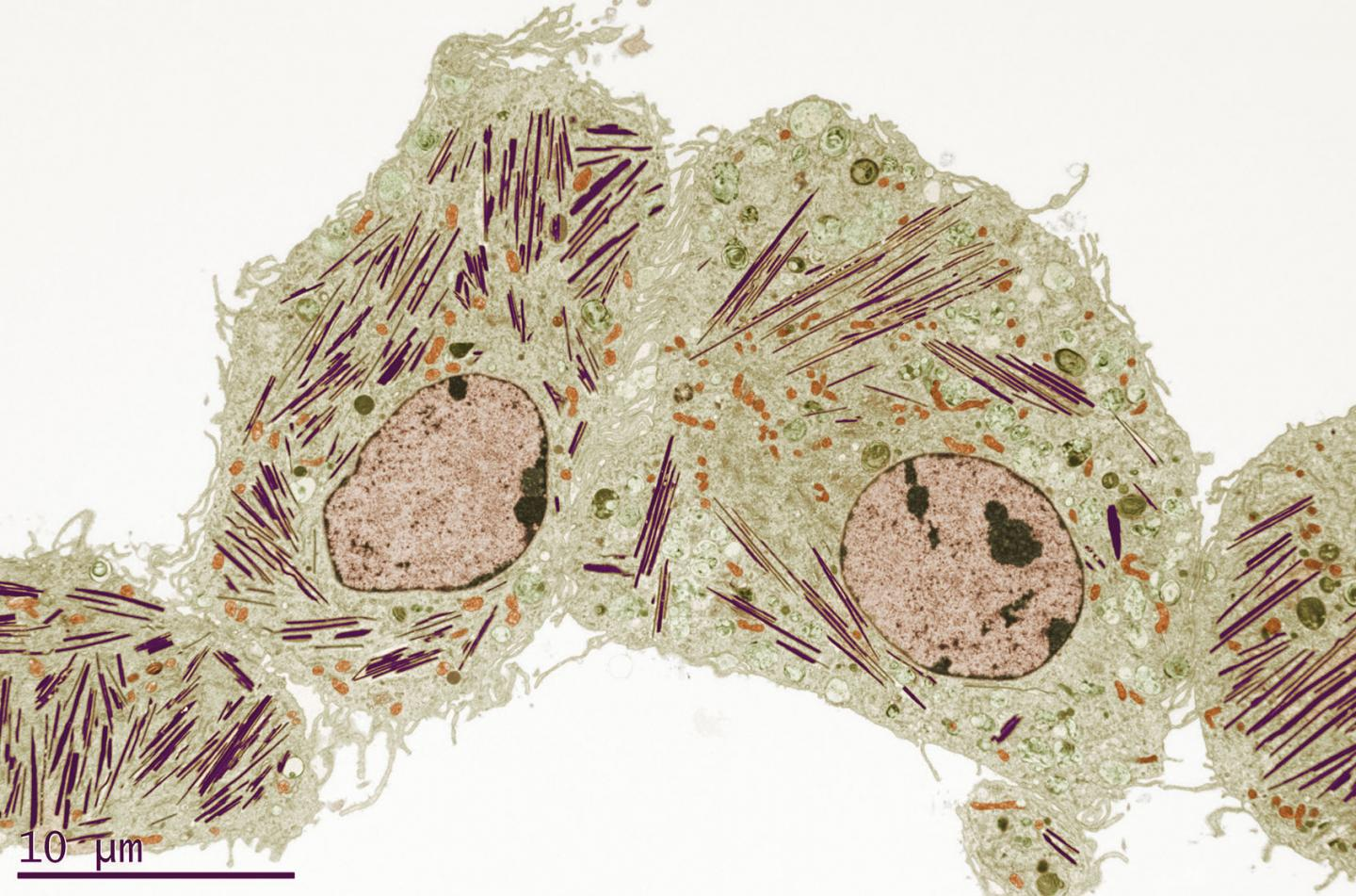 Image of Gaucher's Disease in Mouse Lung