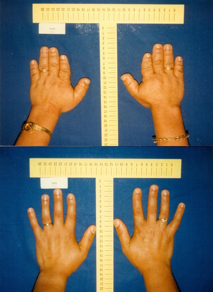 Shortened Fingers