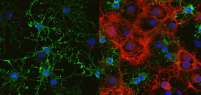 Oligodendrocytes Producing Myelin