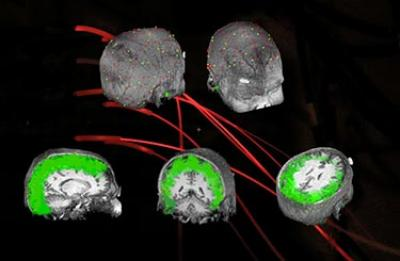 Detecting Brain Waves with EROS