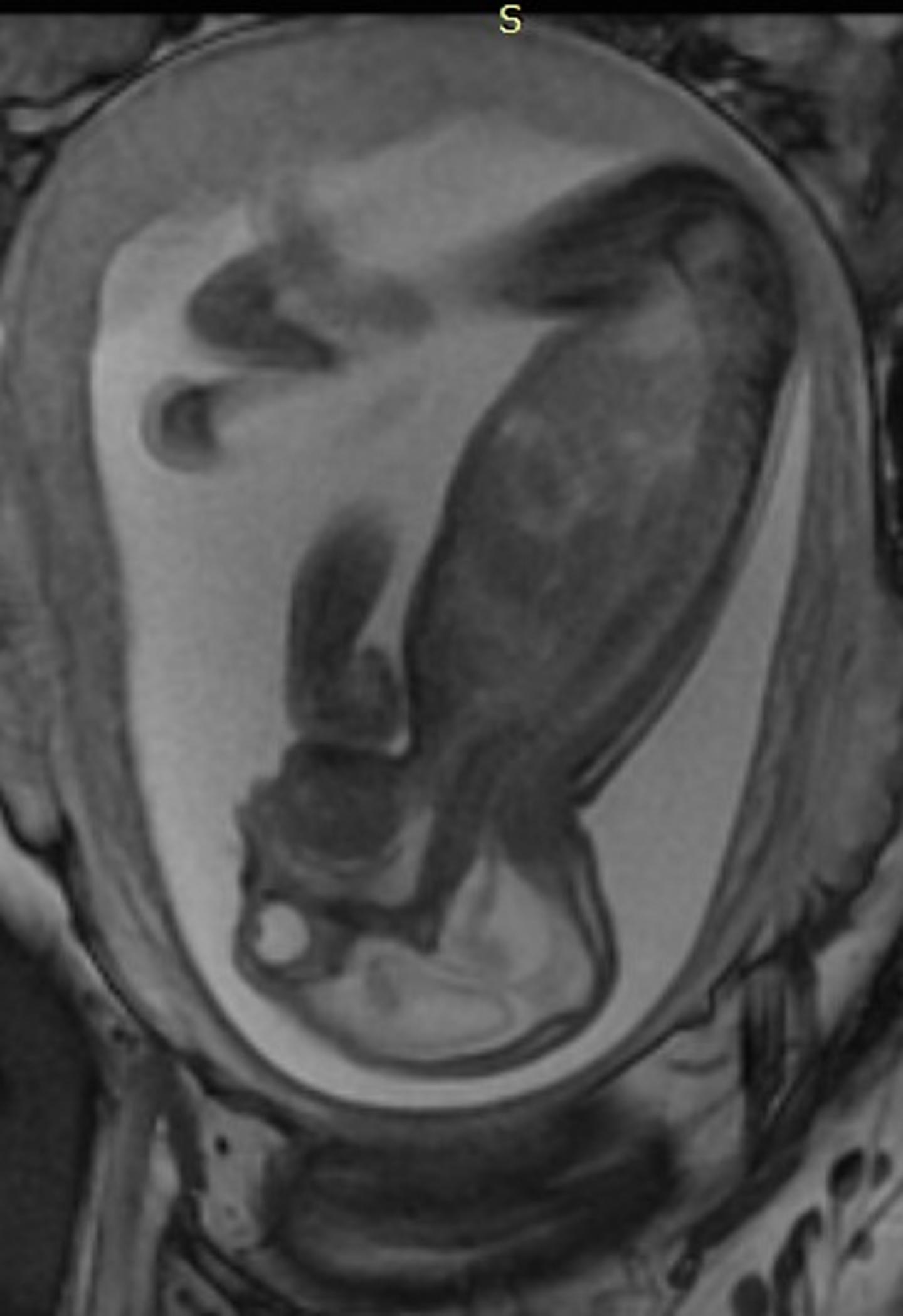 Figure 2: Side View of Fetus