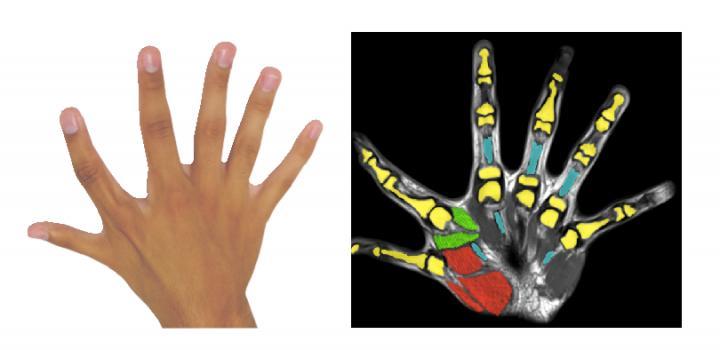 Six Fingers Per Hand