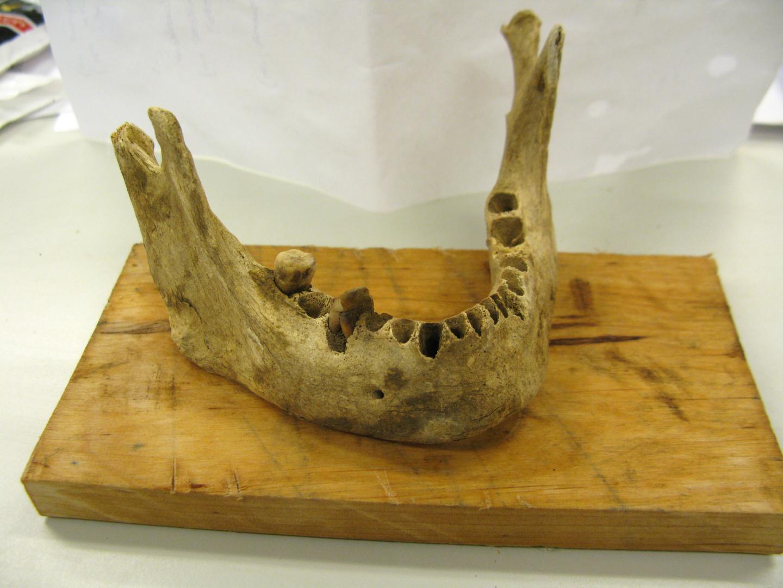 The Teeth of the Deceased