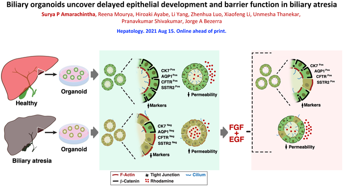 Organoids Reveal Cell Malformations in Biliary Atresia