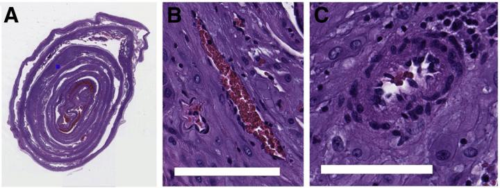 Example Image and Blood Vessel Patches from Data Set