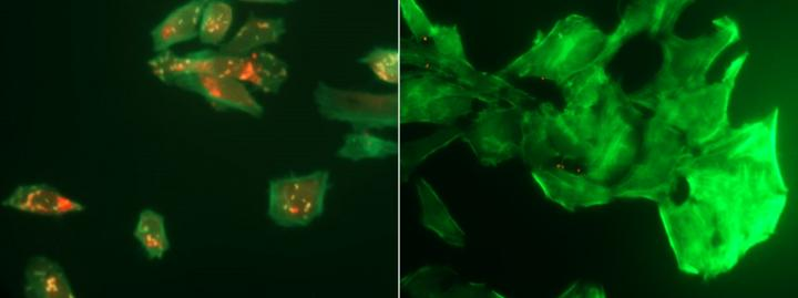 <i>L. monocytogenes</i>